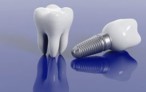 Dental Implant Treatment